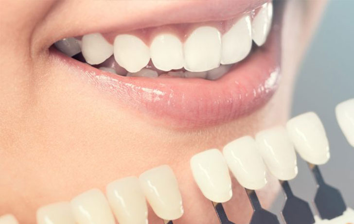 The Latest Trends In Cosmetic Dentistry