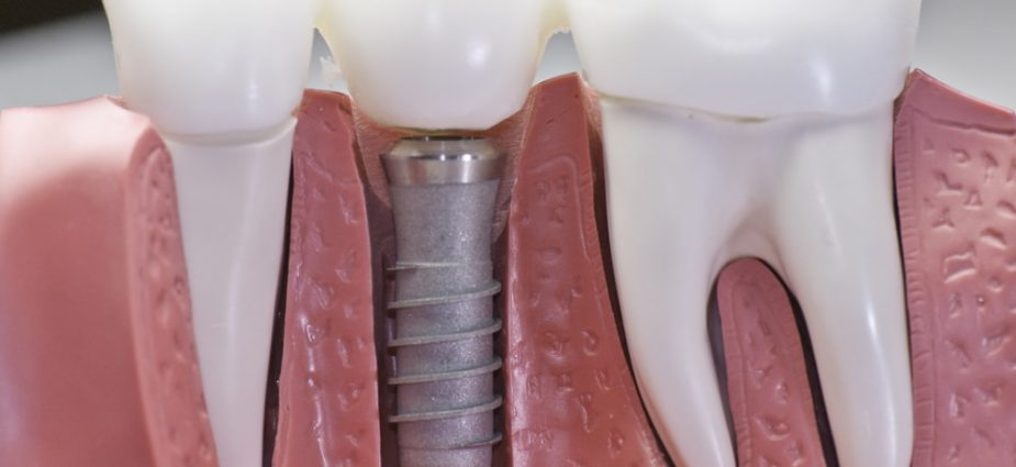 How To Properly Maintain Your Dental Prosthesis