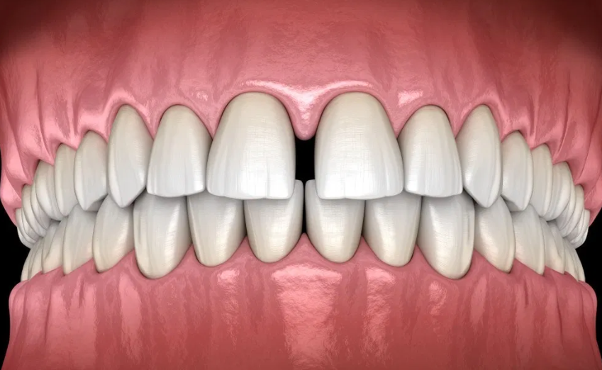 DENTAL AESTHETICS AND THEIR SOLUTIONS