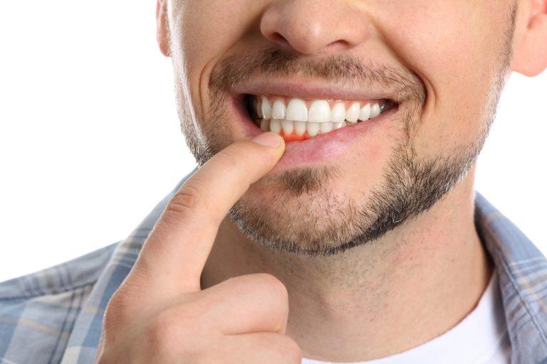 Scaling of Teeth